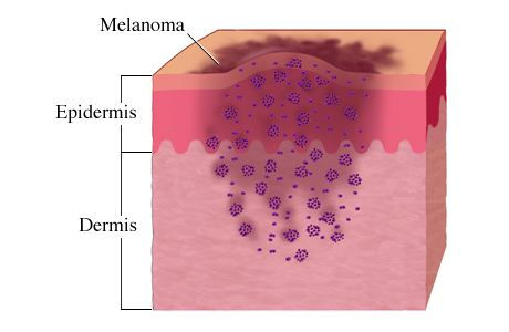 Single injection may revolutionize melanoma treatment